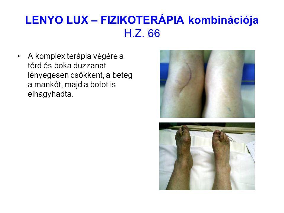 LENYO LUX – FIZIKOTERÁPIA kombinációja H.Z. 66 A komplex terápia végére a térd és boka duzzanat lényegesen csökkent, a beteg a mankót, majd a botot is