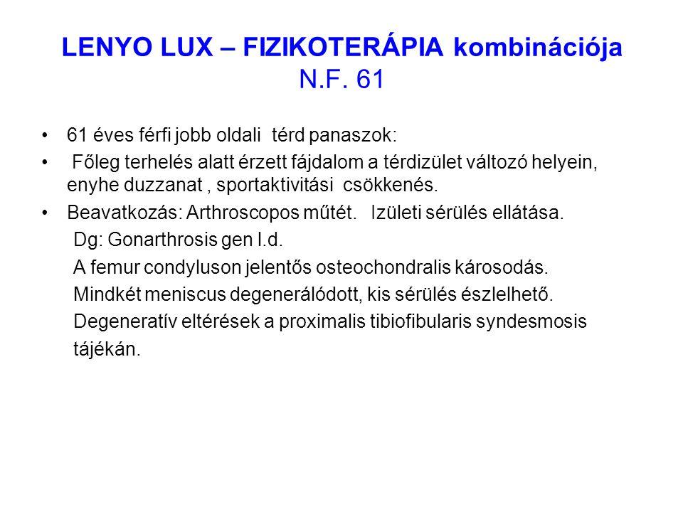 LENYO LUX – FIZIKOTERÁPIA kombinációja N.F. 61 61 éves férfi jobb oldali térd panaszok: Főleg terhelés alatt érzett fájdalom a térdizület változó hely