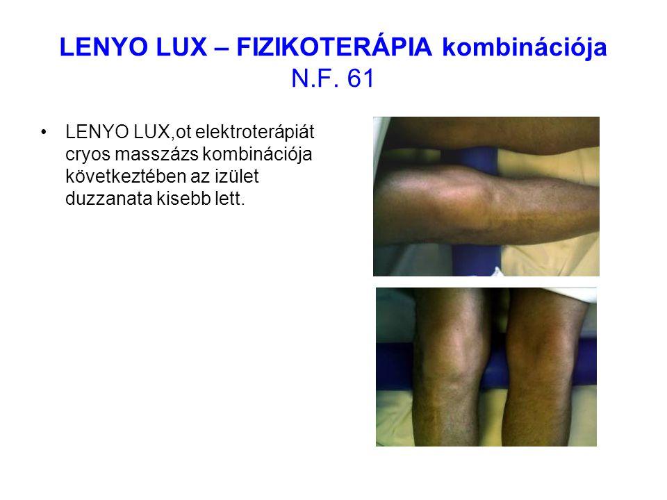 LENYO LUX – FIZIKOTERÁPIA kombinációja N.F. 61 LENYO LUX,ot elektroterápiát cryos masszázs kombinációja következtében az izület duzzanata kisebb lett.