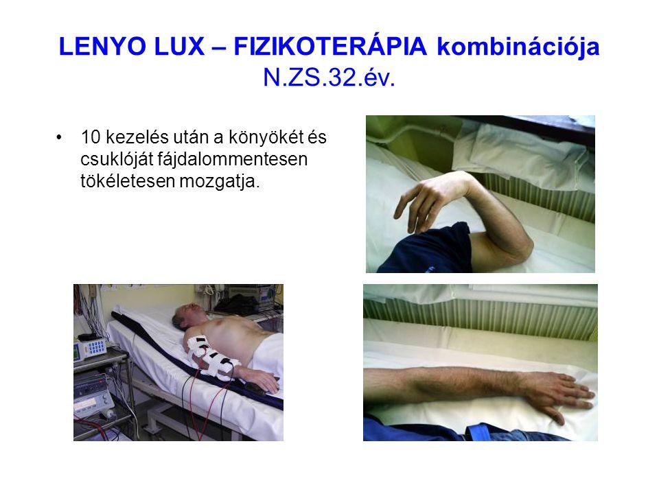 LENYO LUX – FIZIKOTERÁPIA kombinációja N.ZS.32.év. 10 kezelés után a könyökét és csuklóját fájdalommentesen tökéletesen mozgatja.