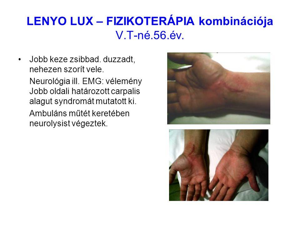 LENYO LUX – FIZIKOTERÁPIA kombinációja V.T-né.56.év. Jobb keze zsibbad. duzzadt, nehezen szorít vele. Neurológia ill. EMG: vélemény Jobb oldali határo