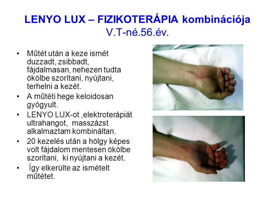 LENYO LUX – FIZIKOTERÁPIA kombinációja V.T-né.56.év. Műtét után a keze ismét duzzadt, zsibbadt, fájdalmasan, nehezen tudta ökölbe szorítani, nyújtani,