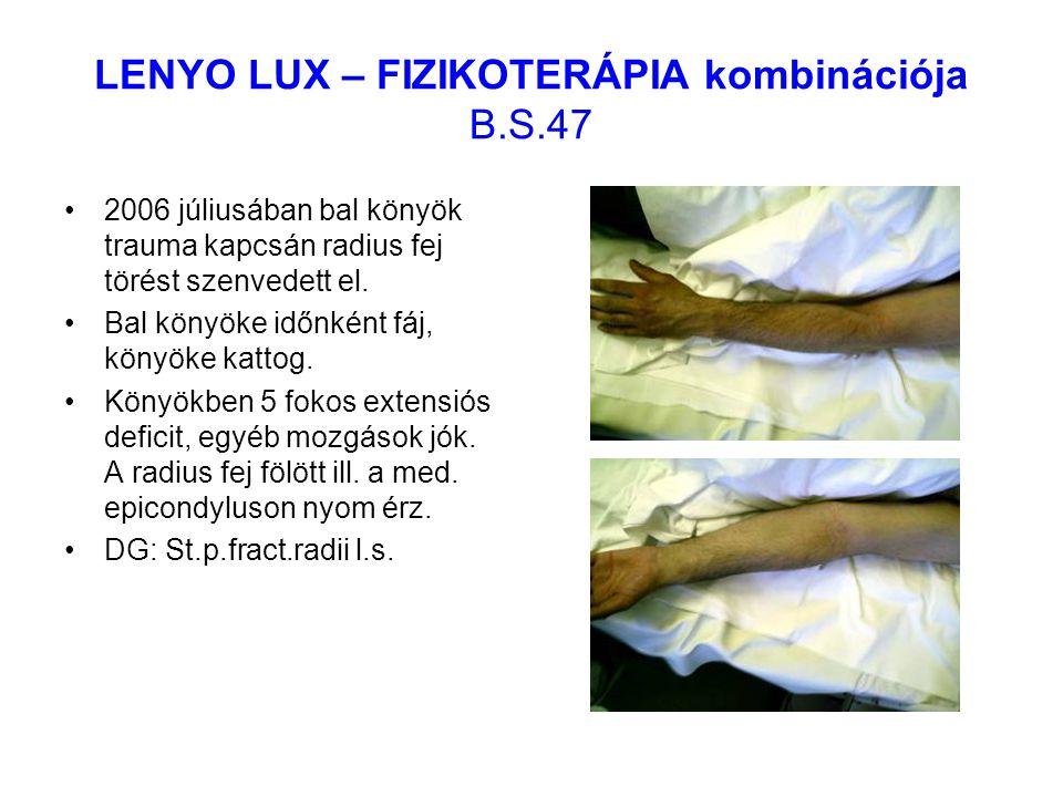 LENYO LUX – FIZIKOTERÁPIA kombinációja B.S.47 2006 júliusában bal könyök trauma kapcsán radius fej törést szenvedett el. Bal könyöke időnként fáj, kön