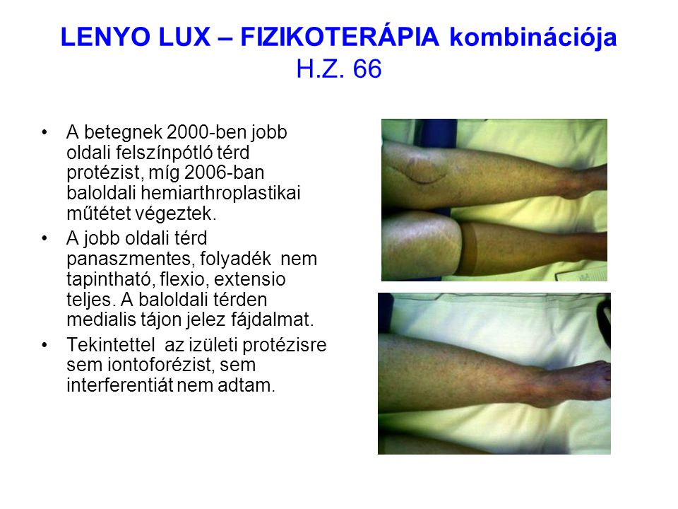 LENYO LUX – FIZIKOTERÁPIA kombinációja H.Z. 66 A betegnek 2000-ben jobb oldali felszínpótló térd protézist, míg 2006-ban baloldali hemiarthroplastikai