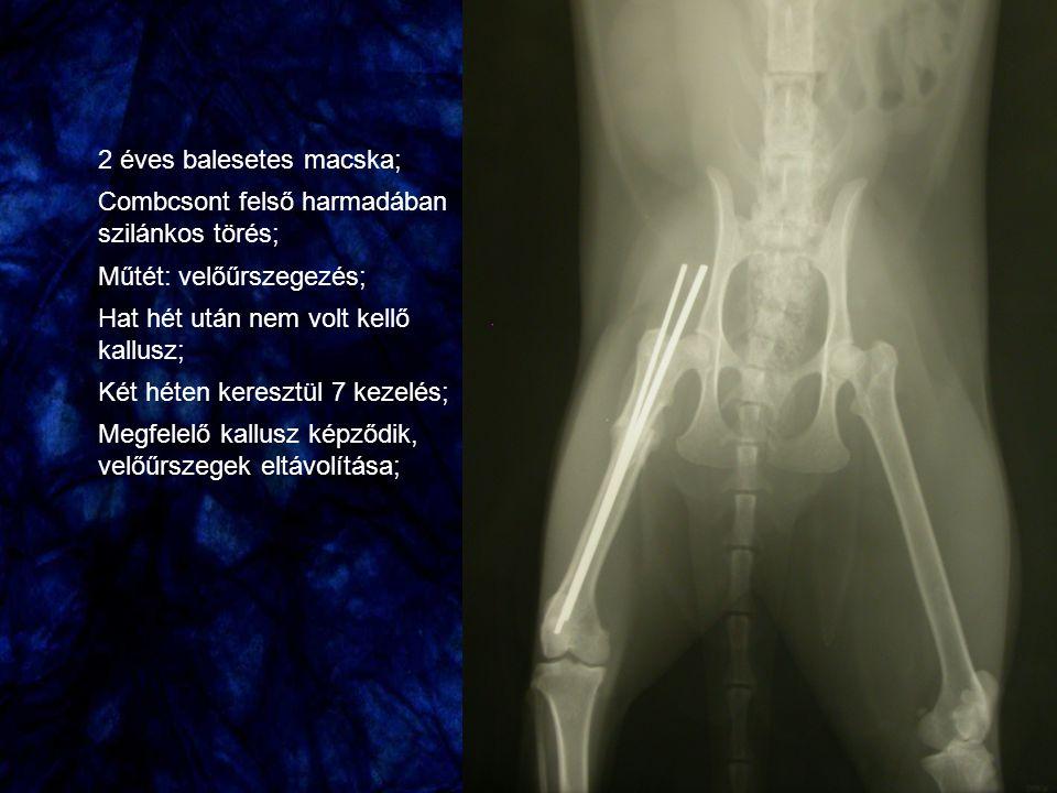 2 éves balesetes macska; Combcsont felső harmadában szilánkos törés; Műtét: velőűrszegezés; Hat hét után nem volt kellő kallusz; Két héten keresztül 7