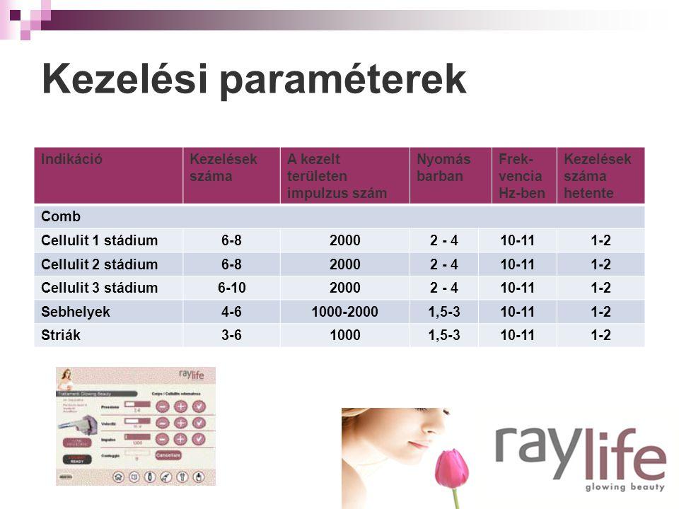 Kezelési paraméterek IndikációKezelések száma A kezelt területen impulzus szám Nyomás barban Frek- vencia Hz-ben Kezelések száma hetente Comb Cellulit