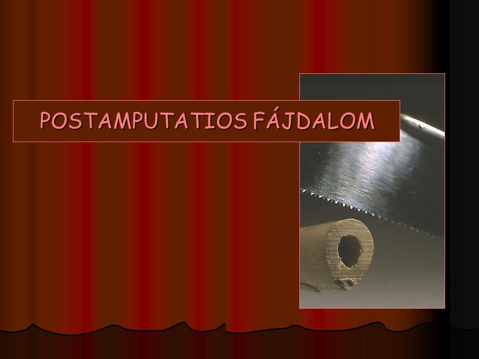 POSTAMPUTATIOS FÁJDALOM