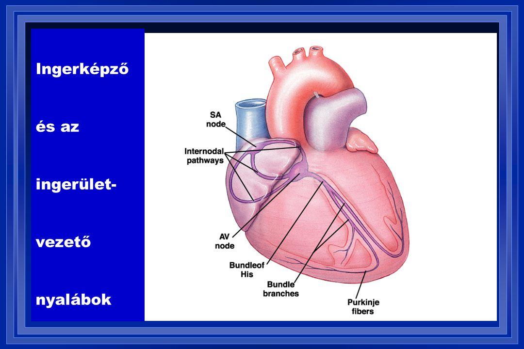 VVI / 60 Pacemakerrel élő beteg EKG-ja VP = ventriculáris pacemaker stimuláció; VS = ventriculáris érzékelés, sensing
