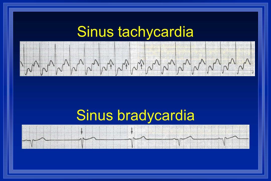 Sinus tachycardia Sinus bradycardia
