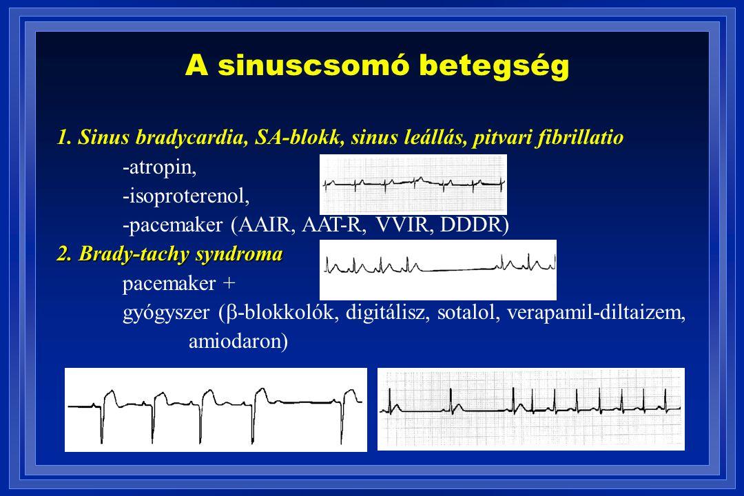 A sinuscsomó betegség 1. Sinus bradycardia, SA-blokk, sinus leállás, pitvari fibrillatio -atropin, -isoproterenol, -pacemaker (AAIR, AAT-R, VVIR, DDDR