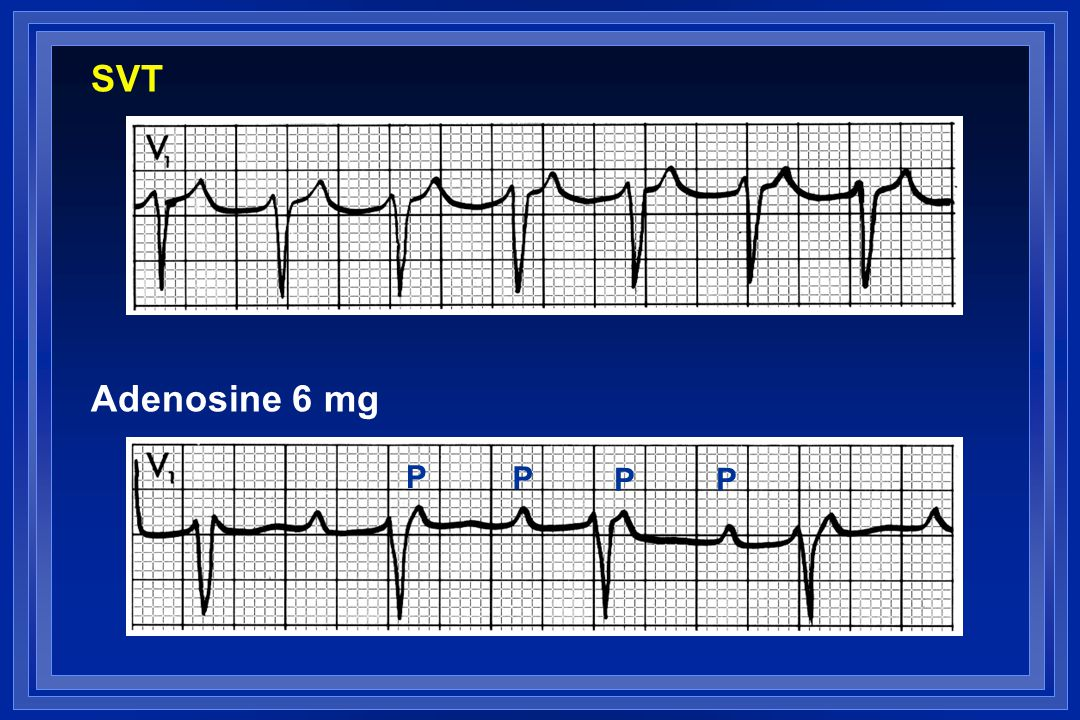 SVT Adenosine 6 mg P P PP