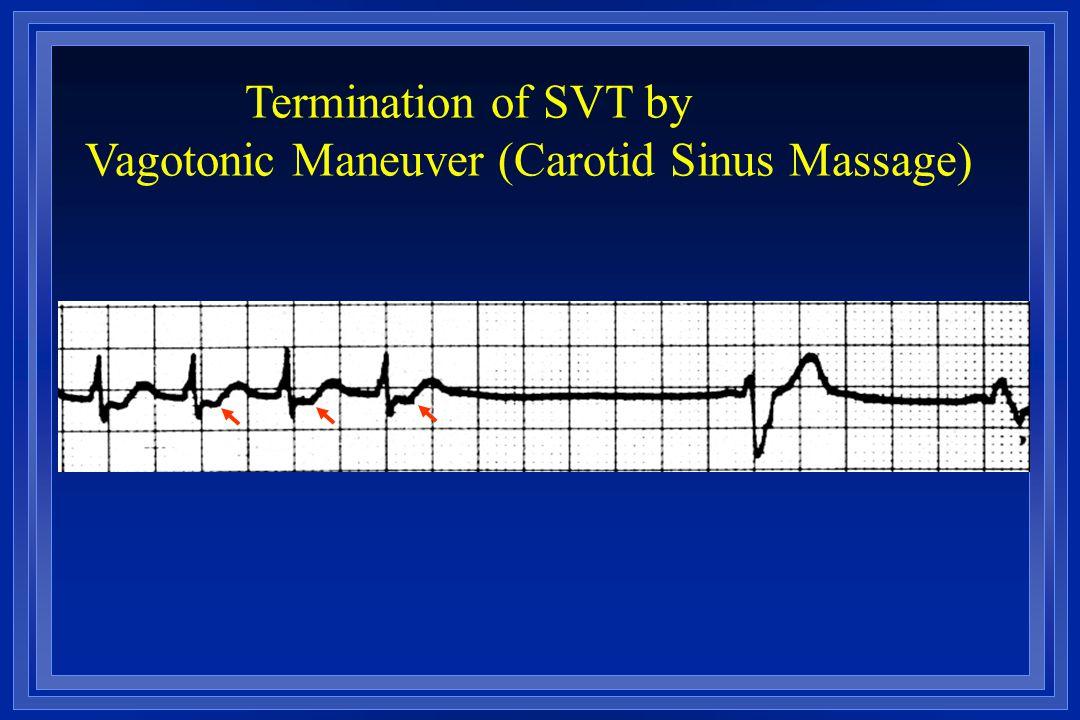 Termination of SVT by Vagotonic Maneuver (Carotid Sinus Massage)