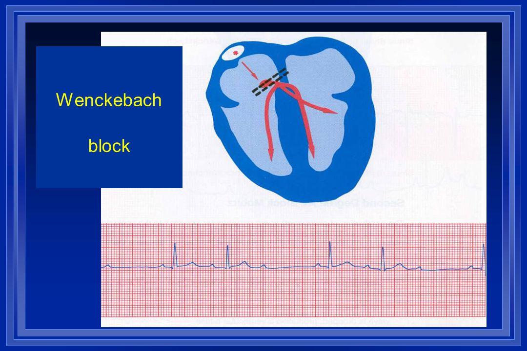 Wenckebach block