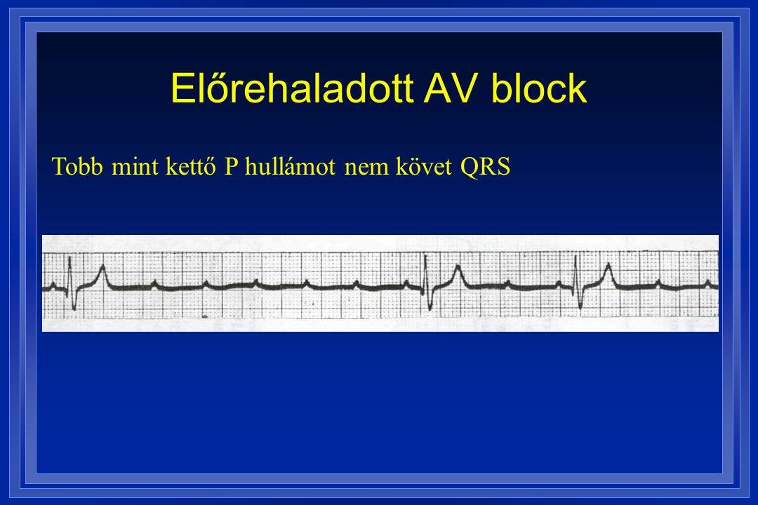 Előrehaladott AV block Tobb mint kettő P hullámot nem követ QRS
