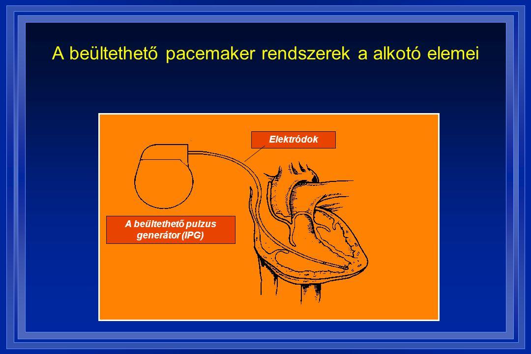 A beültethető pulzus generátor (IPG) Elektródok A beültethető pacemaker rendszerek a alkotó elemei