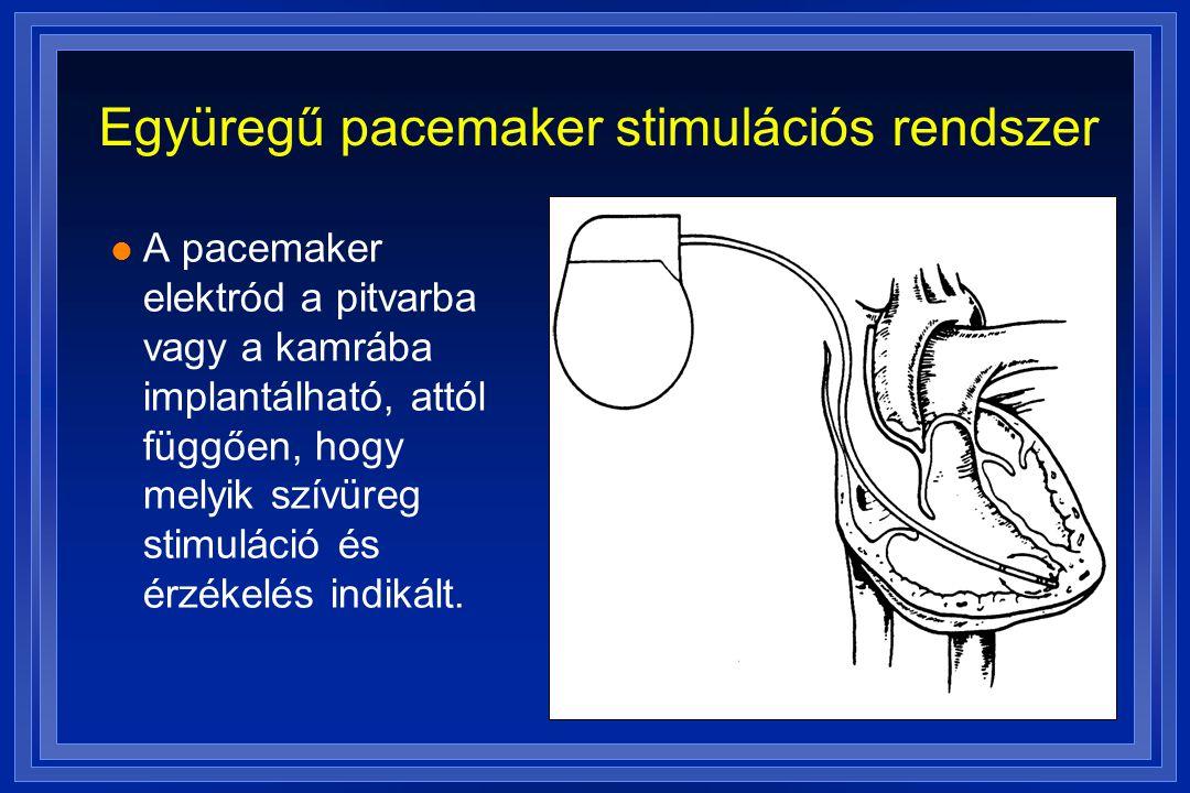 Együregű pacemaker stimulációs rendszer l A pacemaker elektród a pitvarba vagy a kamrába implantálható, attól függően, hogy melyik szívüreg stimuláció