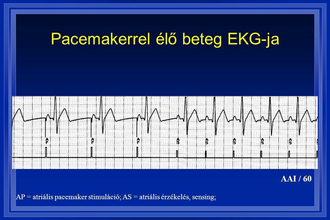 Pacemakerrel élő beteg EKG-ja AAI / 60 AP = atriális pacemaker stimuláció; AS = atriális érzékelés, sensing;