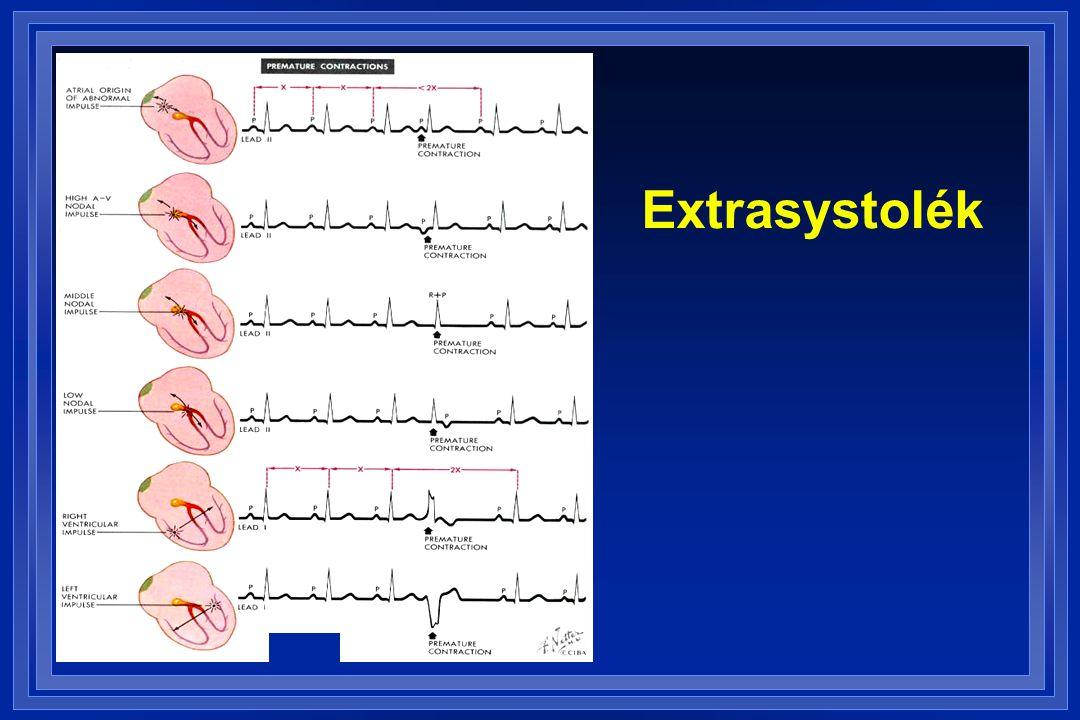 Extrasystolék