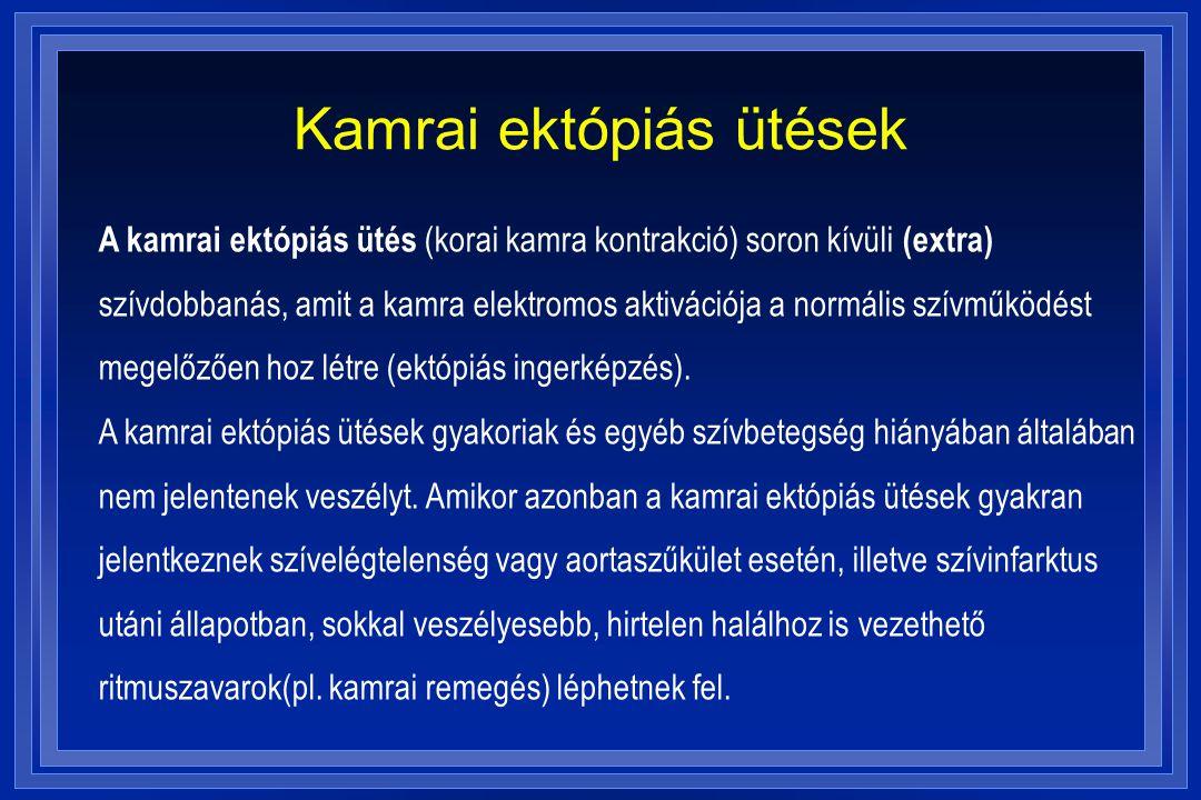 Kamrai ektópiás ütések A kamrai ektópiás ütés (korai kamra kontrakció) soron kívüli (extra) szívdobbanás, amit a kamra elektromos aktivációja a normál