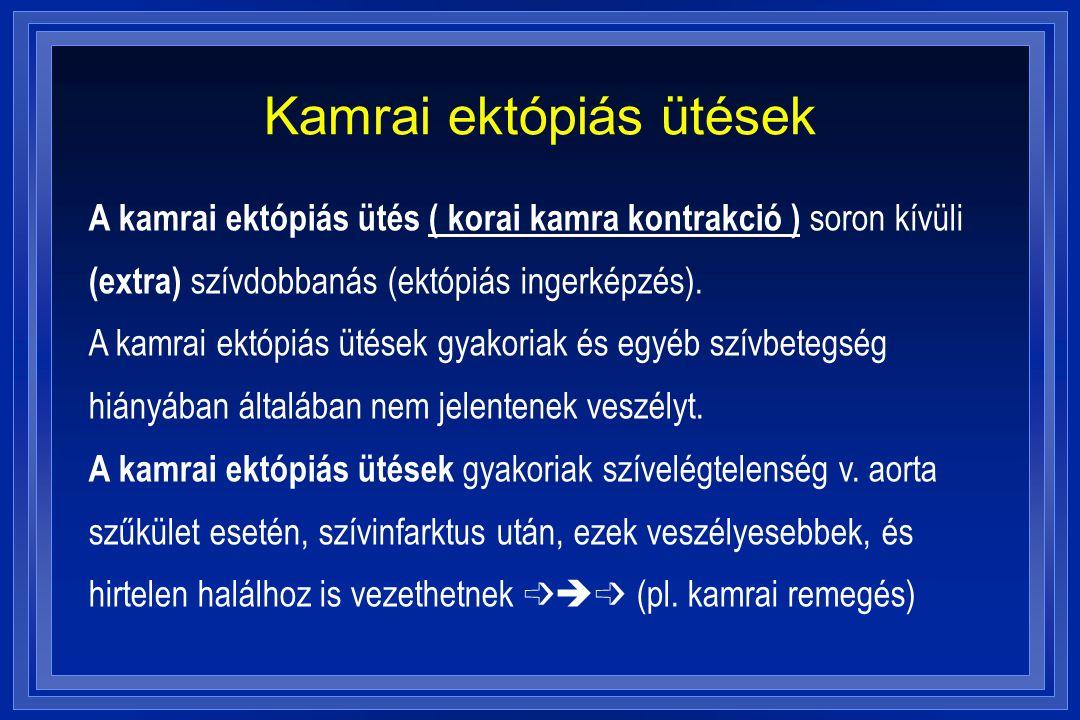 Kamrai ektópiás ütések A kamrai ektópiás ütés ( korai kamra kontrakció ) soron kívüli (extra) szívdobbanás (ektópiás ingerképzés). A kamrai ektópiás ü