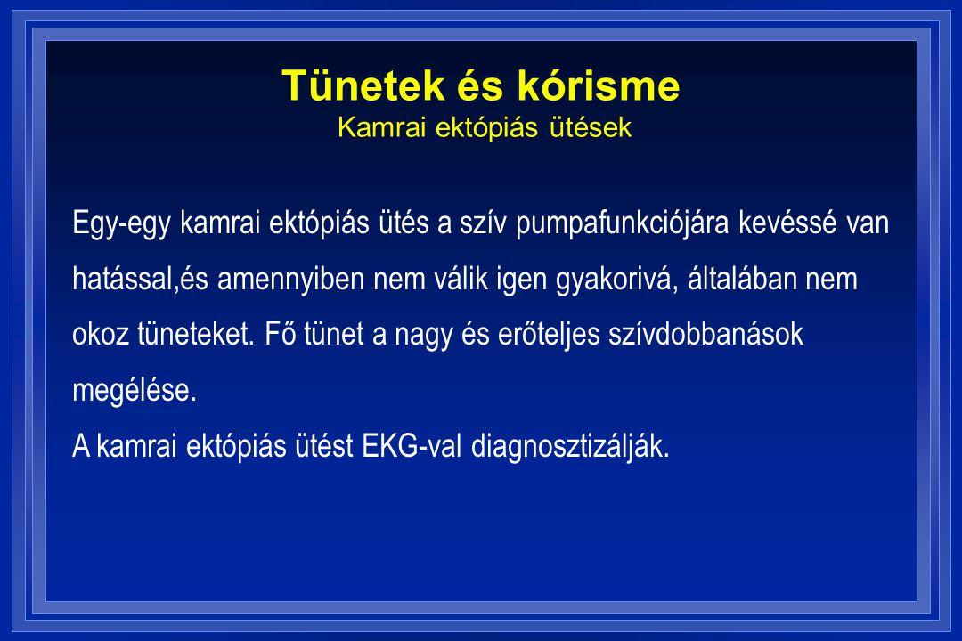 Tünetek és kórisme Kamrai ektópiás ütések Egy-egy kamrai ektópiás ütés a szív pumpafunkciójára kevéssé van hatással,és amennyiben nem válik igen gyako