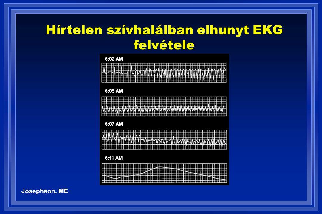Hírtelen szívhalálban elhunyt EKG felvétele Josephson, ME 6:02 AM 6:05 AM 6:07 AM 6:11 AM