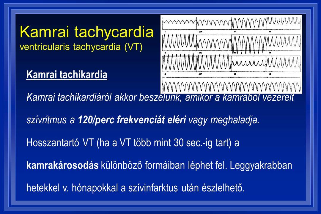 Kamrai tachycardia ventricularis tachycardia (VT) Kamrai tachikardia Kamrai tachikardiáról akkor beszélünk, amikor a kamrából vezérelt szívritmus a 12