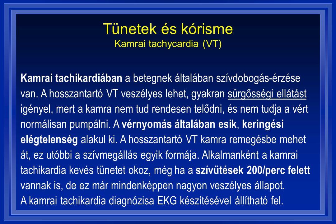 Tünetek és kórisme Kamrai tachycardia (VT) Kamrai tachikardiában a betegnek általában szívdobogás-érzése van. A hosszantartó VT veszélyes lehet, gyakr