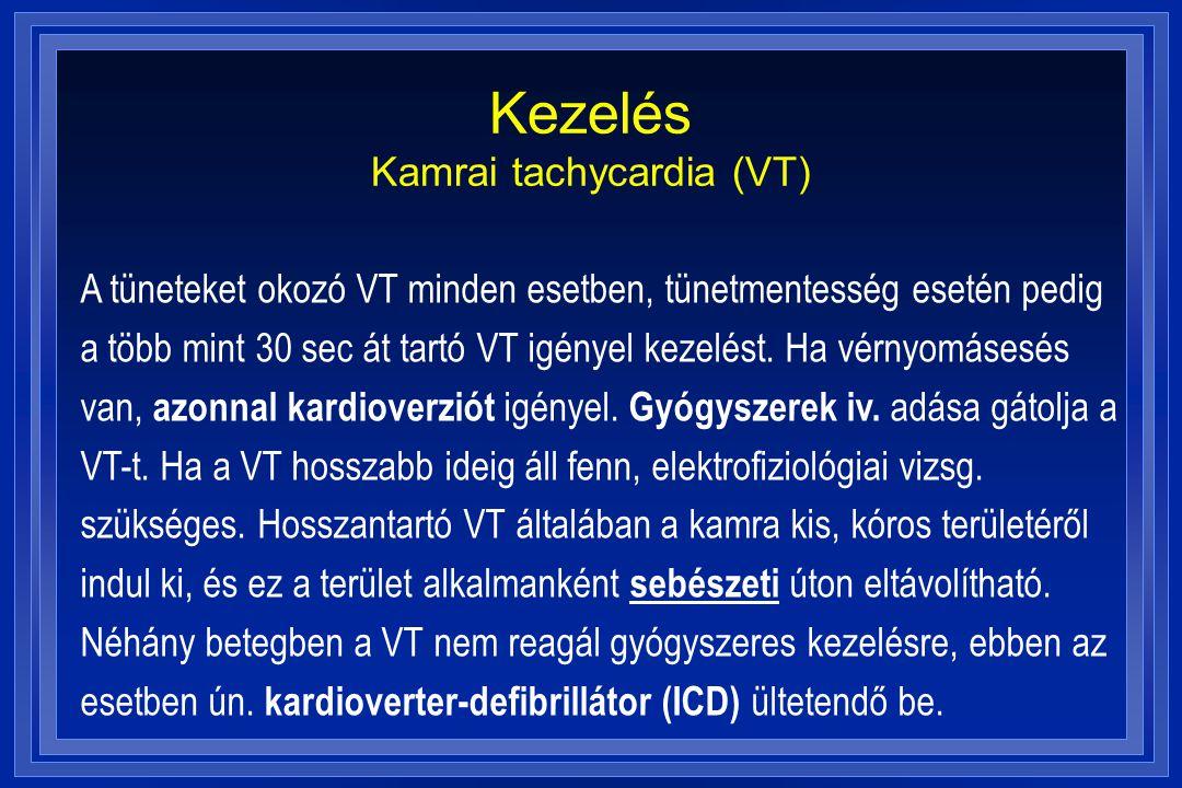 Kezelés Kamrai tachycardia (VT) A tüneteket okozó VT minden esetben, tünetmentesség esetén pedig a több mint 30 sec át tartó VT igényel kezelést. Ha v