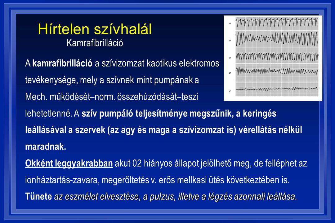 Hírtelen szívhalál Kamrafibrilláció A kamrafibrilláció a szívizomzat kaotikus elektromos tevékenysége, mely a szívnek mint pumpának a Mech. működését–