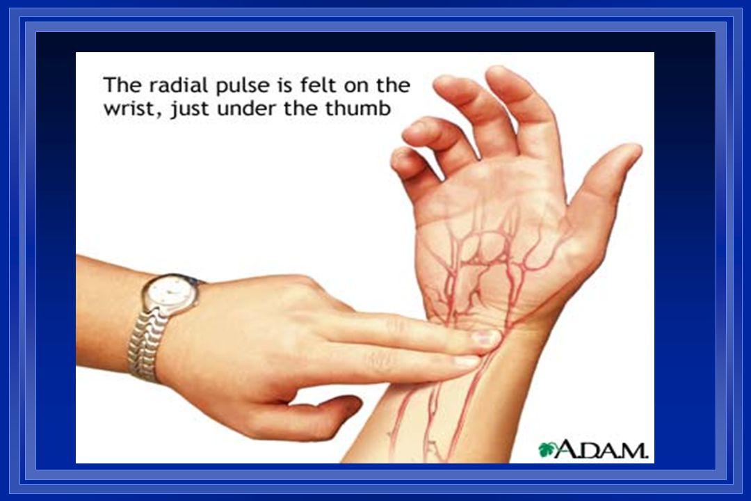 Tünetek és kórisme A sinuscsomó betegség Fáradtság, gyengeséget Ájulás, Szívdobogásérzés, Mellkasi fájdalom A szinusz csomó betegség dg.