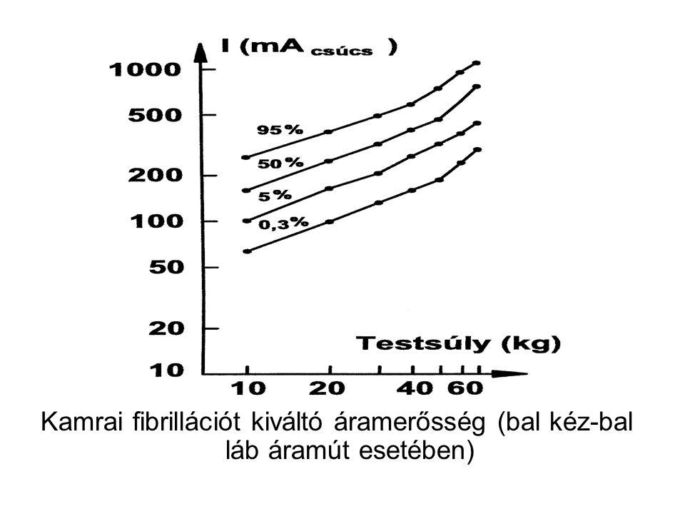 Kamrai fibrillációt kiváltó áramerősség (bal kéz-bal láb áramút esetében)