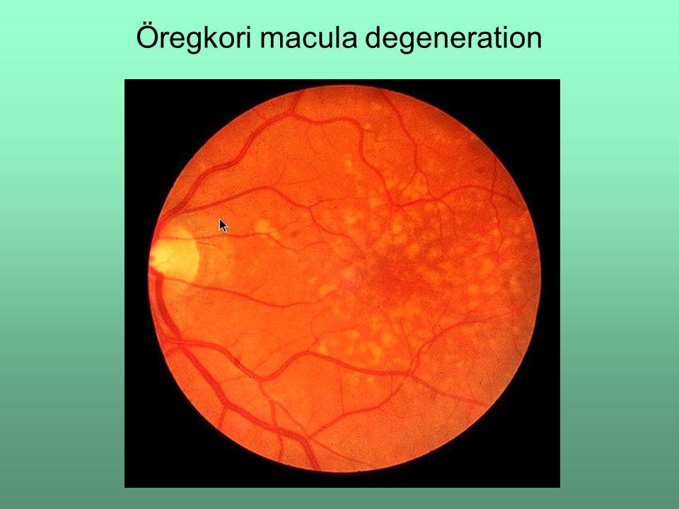 Öregkori macula degeneration