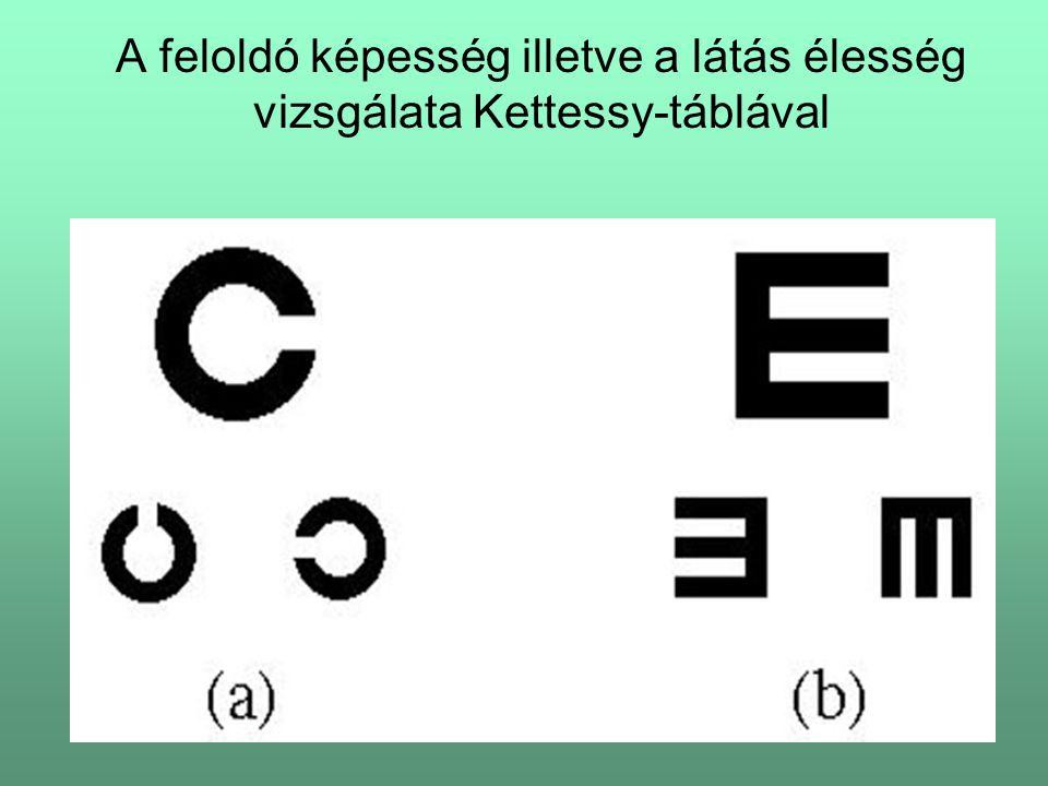A feloldó képesség illetve a látás élesség vizsgálata Kettessy-táblával