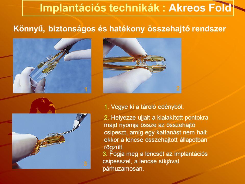 1. Vegye ki a tároló edényből. 1 3 3. Fogja meg a lencsét az implantációs csipesszel, a lencse síkjával párhuzamosan. 2 2. Helyezze ujjait a kialakíto