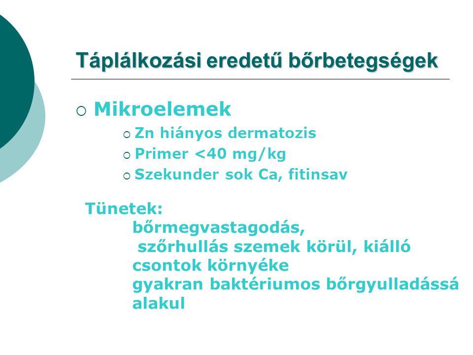  Mikroelemek  Zn hiányos dermatozis  Primer <40 mg/kg  Szekunder sok Ca, fitinsav Táplálkozási eredetű bőrbetegségek Tünetek: bőrmegvastagodás, sz