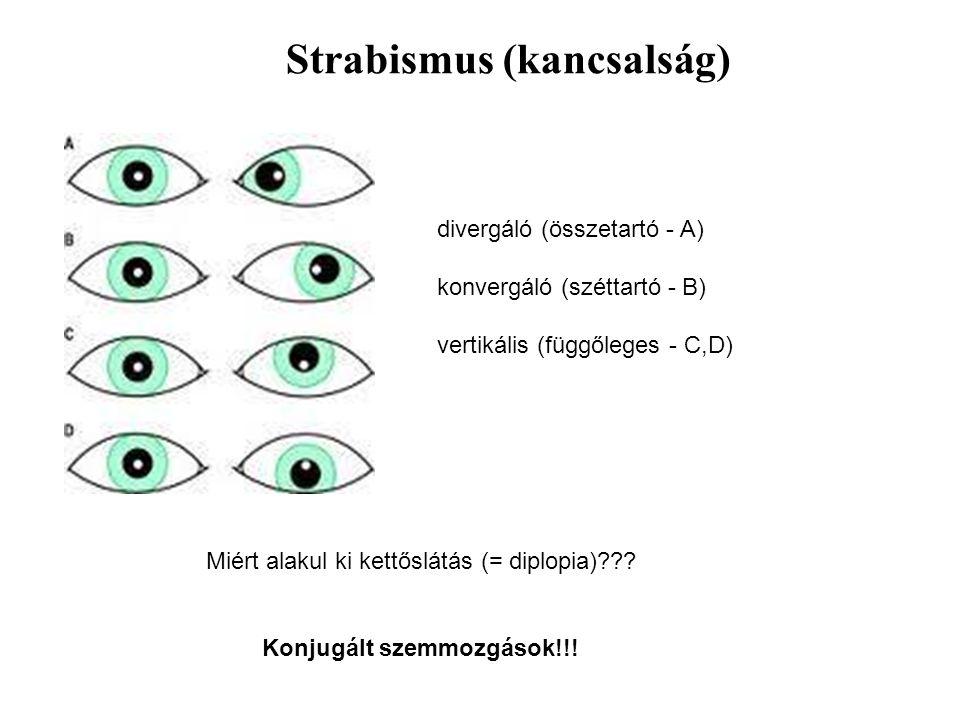 Strabismus (kancsalság) divergáló (összetartó - A) konvergáló (széttartó - B) vertikális (függőleges - C,D) Miért alakul ki kettőslátás (= diplopia)??