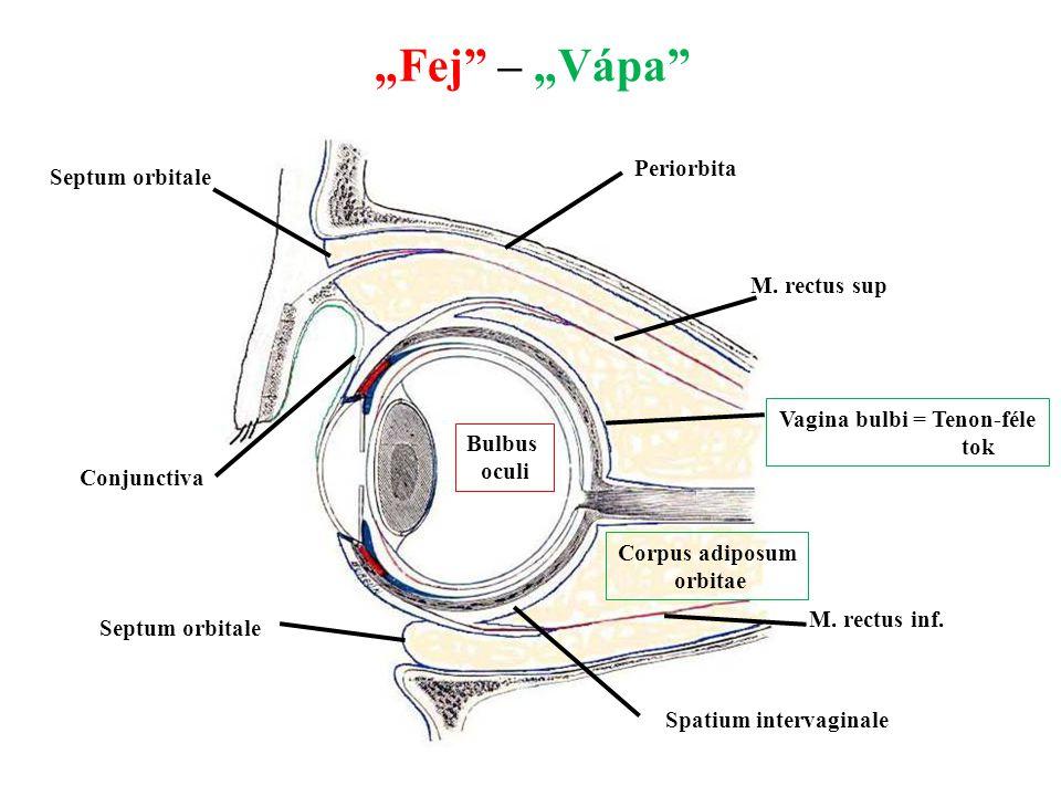 """""""Fej"""" – """"Vápa"""" Bulbus oculi Spatium intervaginale Vagina bulbi = Tenon-féle tok Corpus adiposum orbitae Periorbita M. rectus sup M. rectus inf. Septum"""