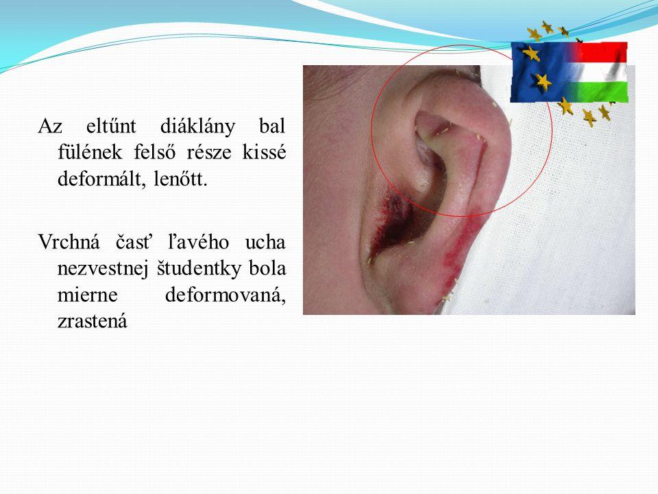 Az eltűnt diáklány bal fülének felső része kissé deformált, lenőtt. Vrchná časť ľavého ucha nezvestnej študentky bola mierne deformovaná, zrastená