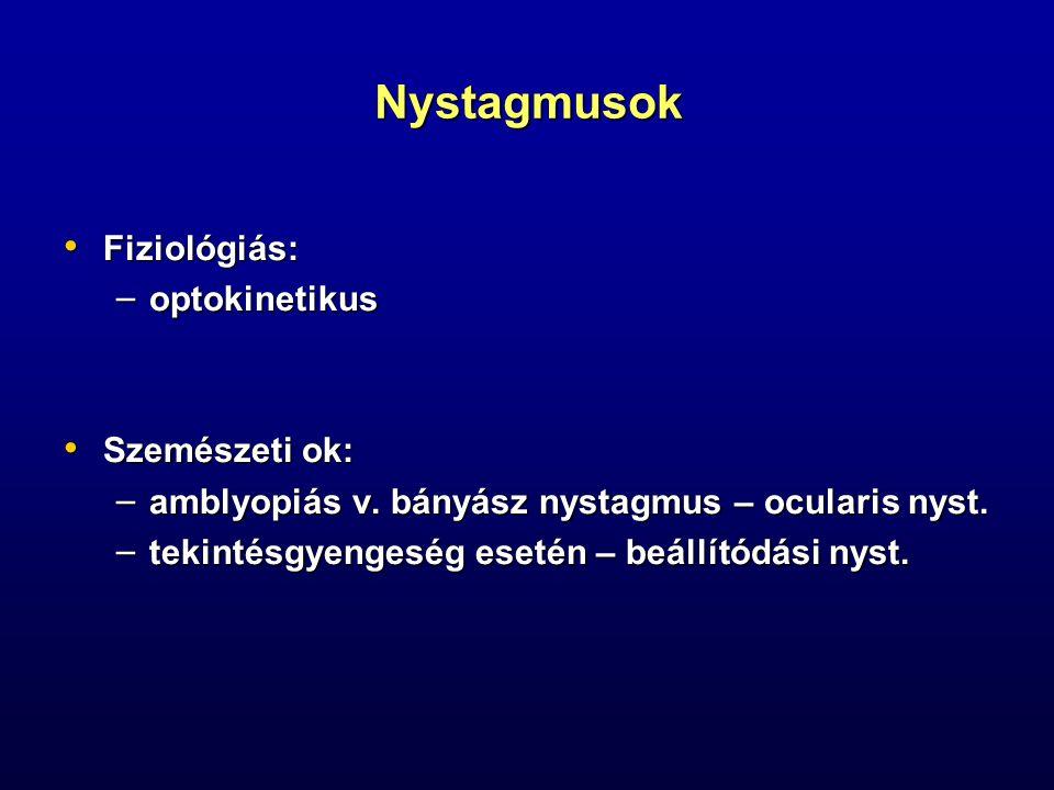 Nystagmusok Fiziológiás: Fiziológiás: – optokinetikus Szemészeti ok: Szemészeti ok: – amblyopiás v. bányász nystagmus – ocularis nyst. – tekintésgyeng