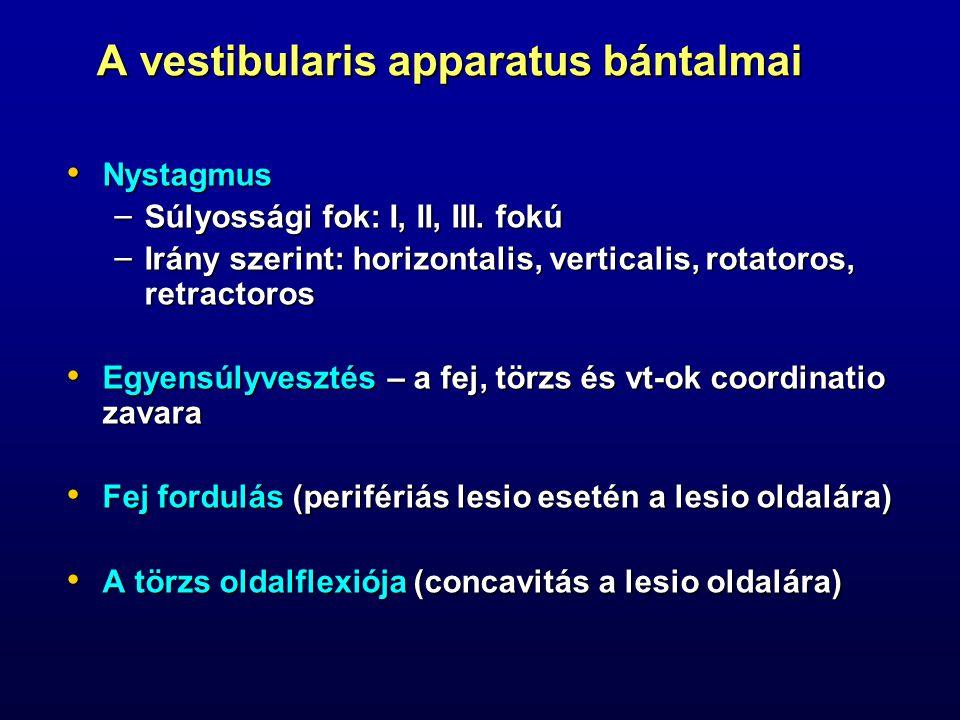A vestibularis apparatus bántalmai Nystagmus Nystagmus – Súlyossági fok: I, II, III. fokú – Irány szerint: horizontalis, verticalis, rotatoros, retrac