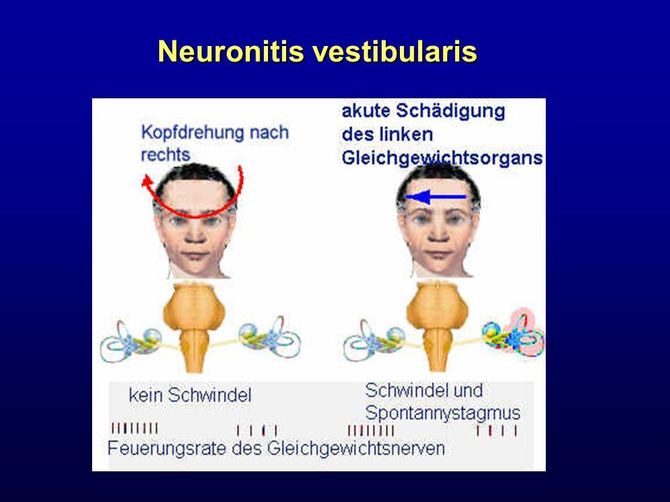 Neuronitis vestibularis