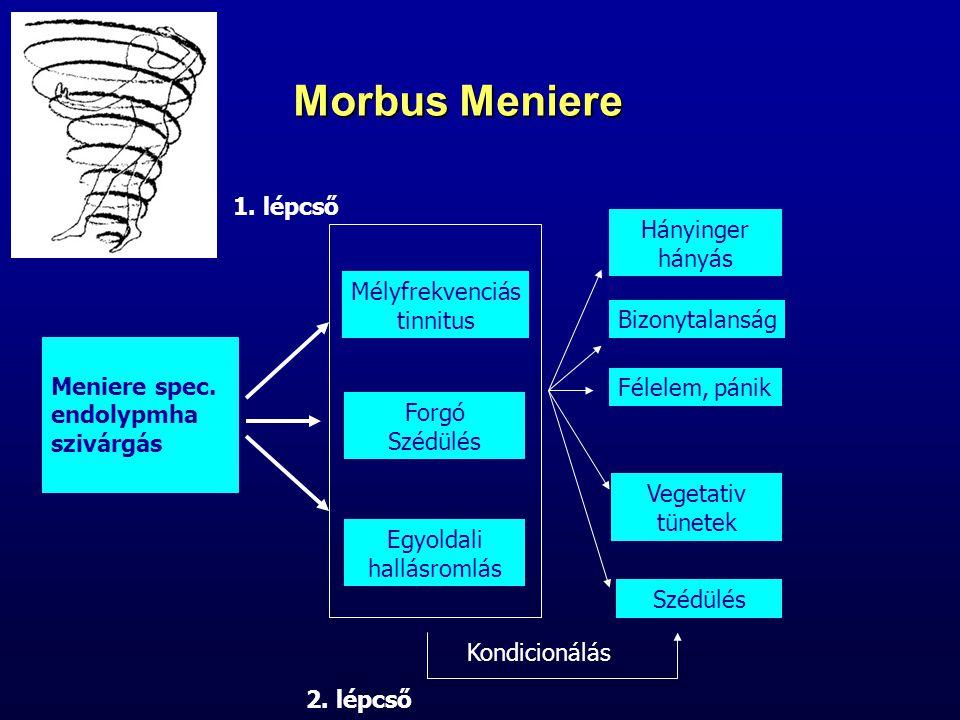 Morbus Meniere Meniere spec. endolypmha szivárgás Mélyfrekvenciás tinnitus Forgó Szédülés Egyoldali hallásromlás Hányinger hányás Bizonytalanság Félel