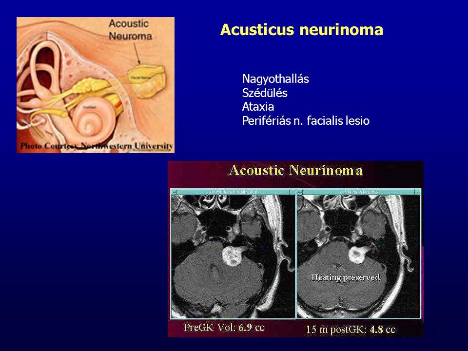 Nagyothallás Szédülés Ataxia Perifériás n. facialis lesio Acusticus neurinoma