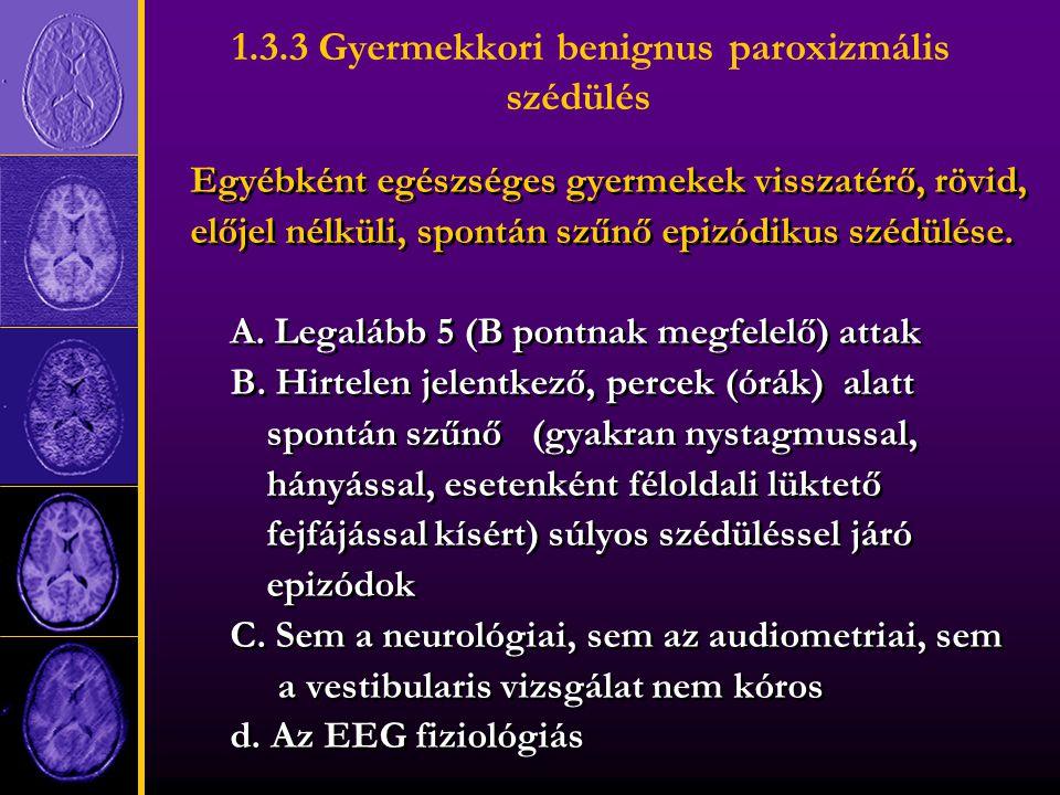 1.3.3 Gyermekkori benignus paroxizmális szédülés Egyébként egészséges gyermekek visszatérő, rövid, előjel nélküli, spontán szűnő epizódikus szédülése.