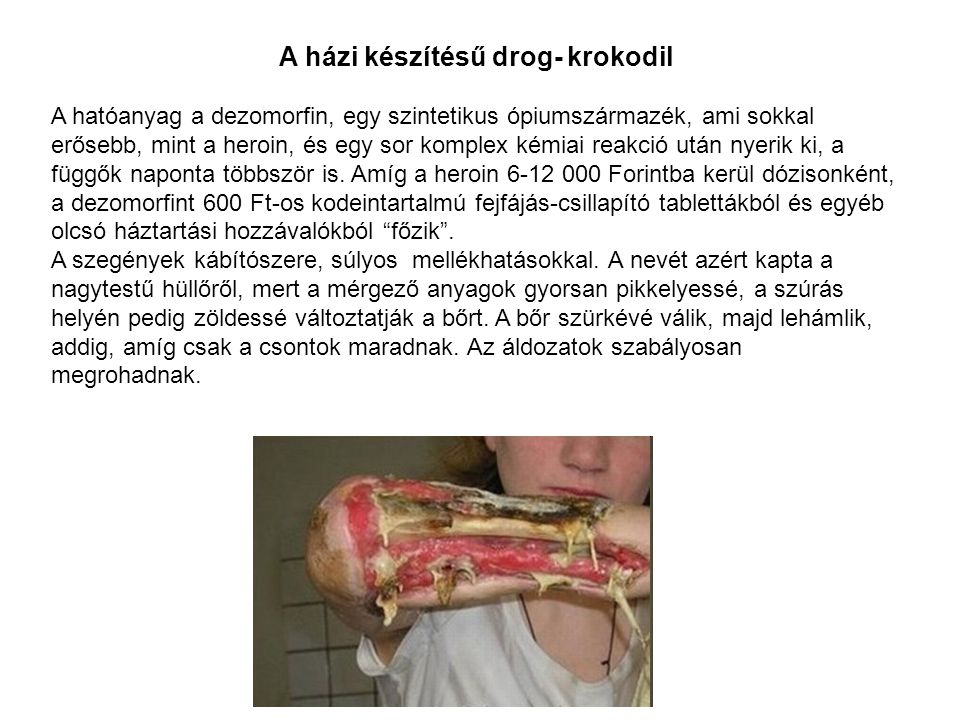 A házi készítésű drog- krokodil A hatóanyag a dezomorfin, egy szintetikus ópiumszármazék, ami sokkal erősebb, mint a heroin, és egy sor komplex kémiai