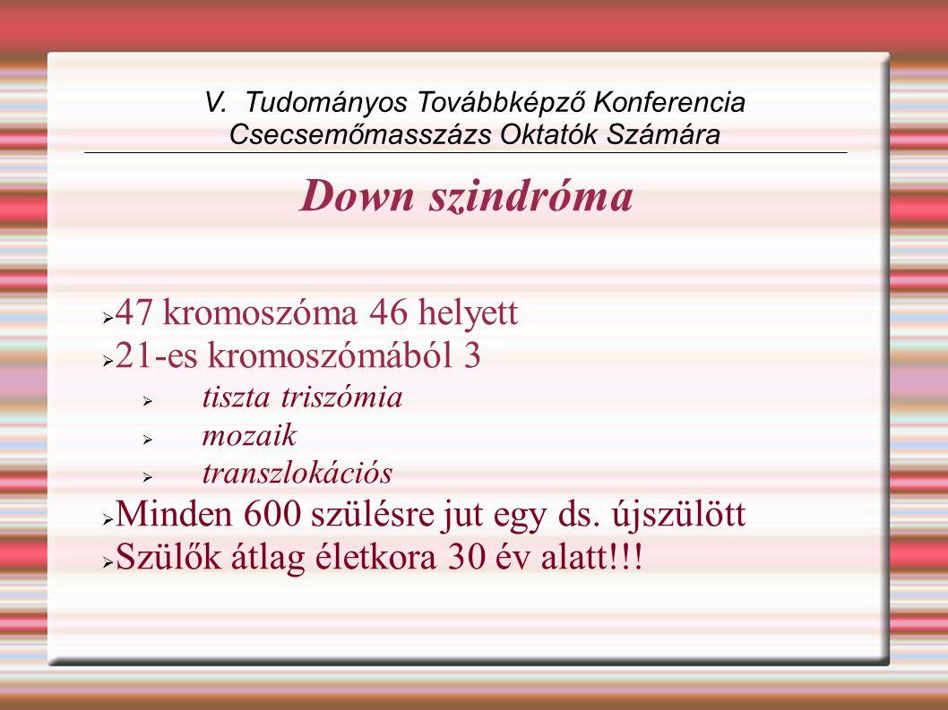 Down szindróma  47 kromoszóma 46 helyett  21-es kromoszómából 3  tiszta triszómia  mozaik  transzlokációs  Minden 600 szülésre jut egy ds.