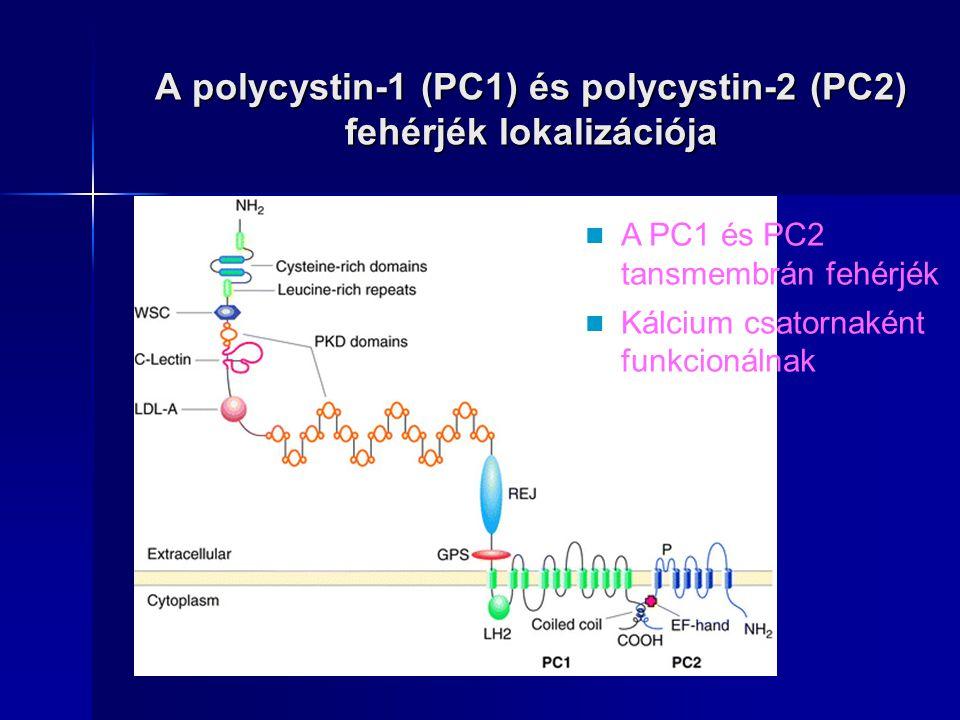 A polycystin-1 (PC1) és polycystin-2 (PC2) fehérjék lokalizációja A PC1 és PC2 tansmembrán fehérjék Kálcium csatornaként funkcionálnak