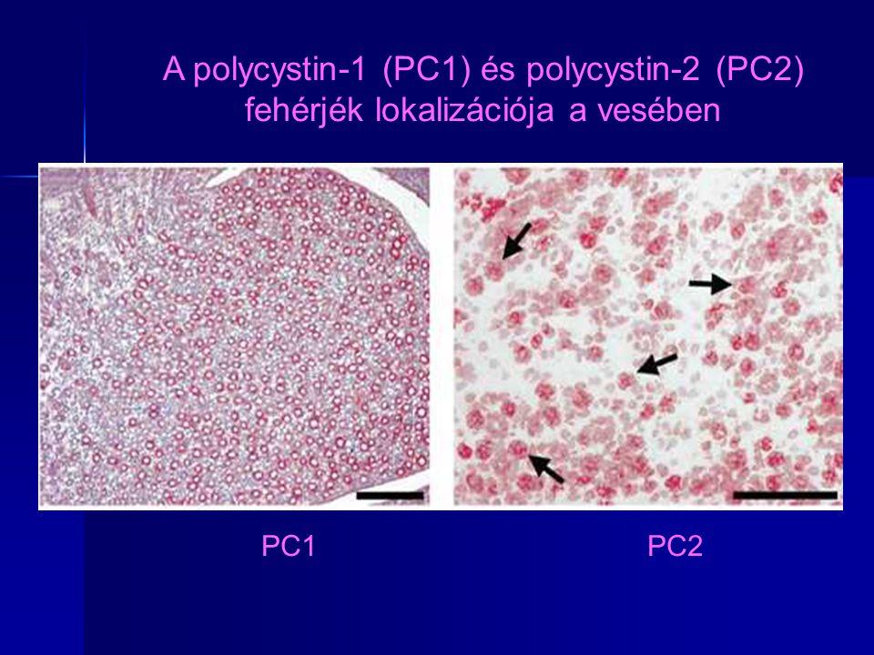 PC1 PC2 A polycystin-1 (PC1) és polycystin-2 (PC2) fehérjék lokalizációja a vesében