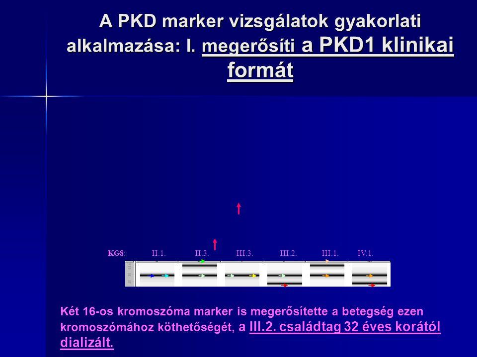 A PKD marker vizsgálatok gyakorlati alkalmazása: I. megerősíti a PKD1 klinikai formát KG8: II.1. II.3. III.3. III.2. III.1. IV.1. Két 16-os kromoszóma